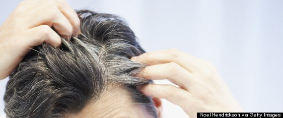 gray hair scalp