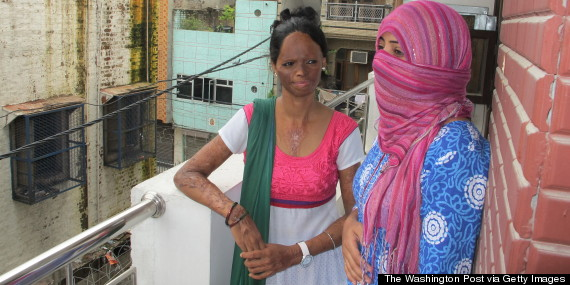 laxmi acid attack