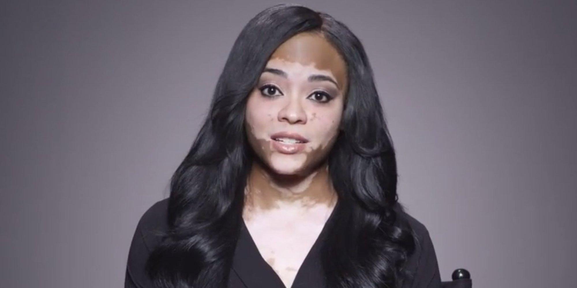 Dating vitiligo in Australia