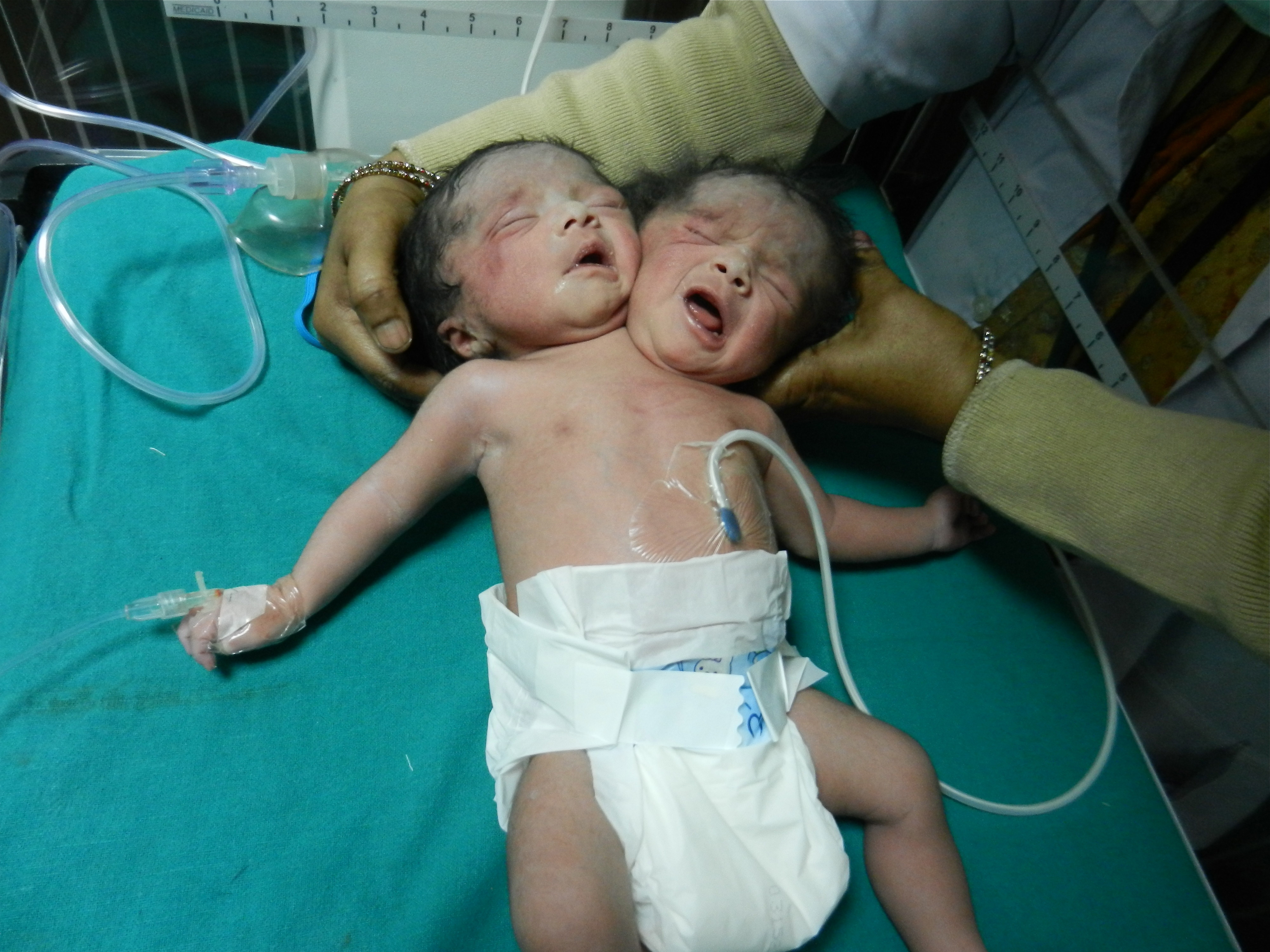 female baby having two heads' born in india | huffpost
