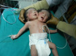'Female Baby Having Two Heads' Born In India