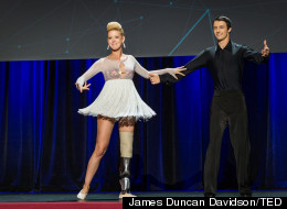 Boston Bombing Amputee Dances For 1st Time