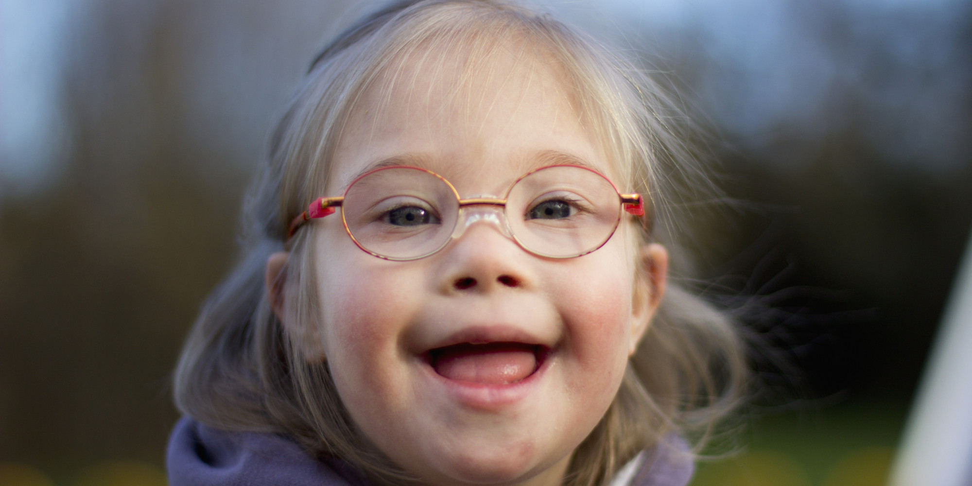 Magnificent idea Downs syndrome girl facebook opinion you