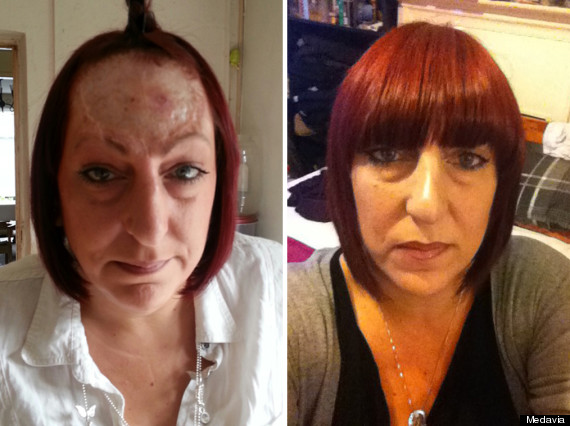 woman no forehead