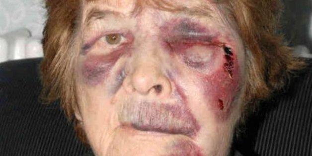 Grandma Sabina Harrison Grandma Battered In Random