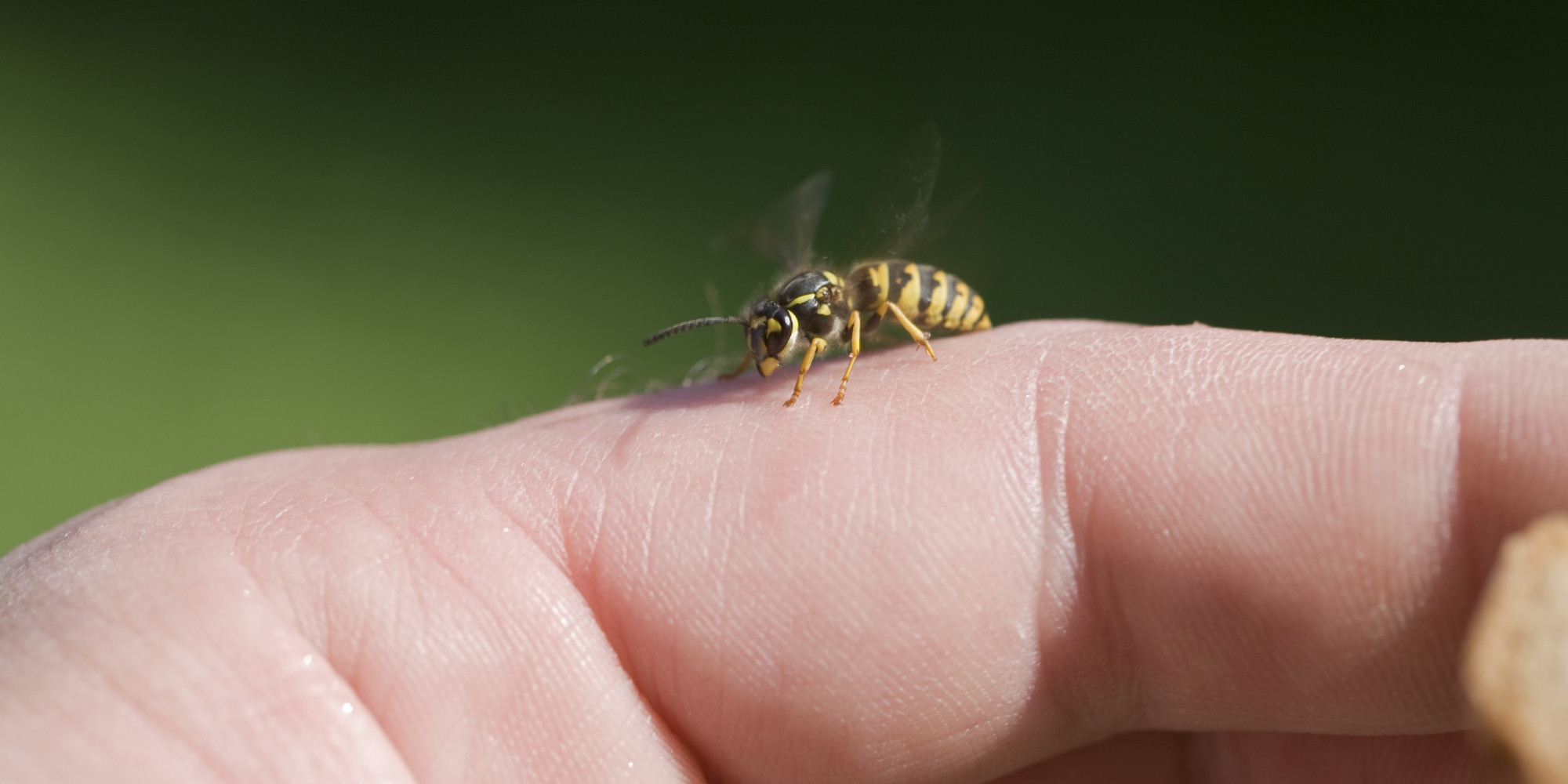 What Are Bee Sting Allergy Symptoms? - WebMD