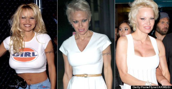 45faa7b89a6f9 Pamela Anderson Finally Starts To Remove Barbed Wire Tattoo | HuffPost