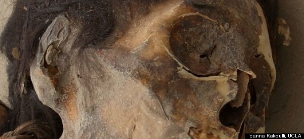 Signs Of Poisoning Seen In Ancient Mummies