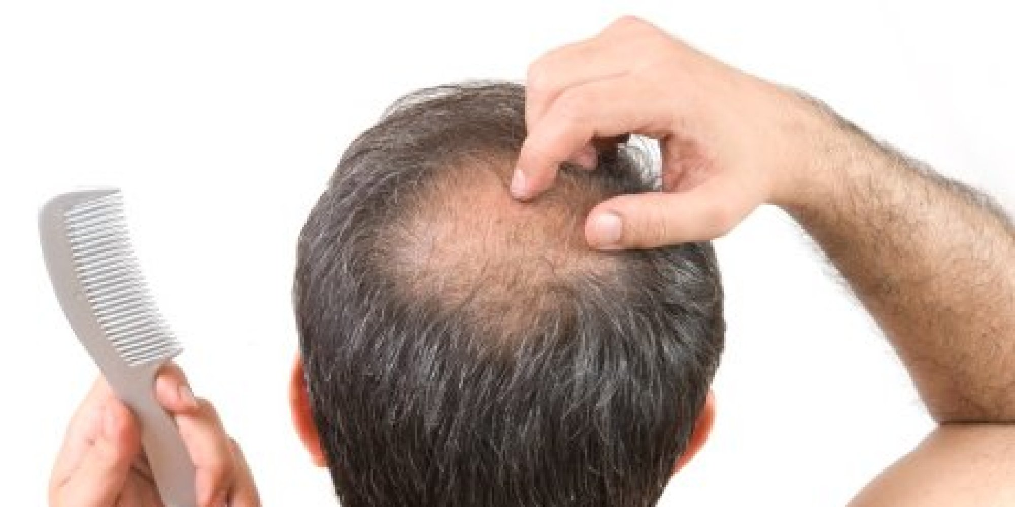 Natural Remedy For Hair Loss Male