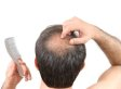 Hair Loss Cures: Top Foods For Hair Growth