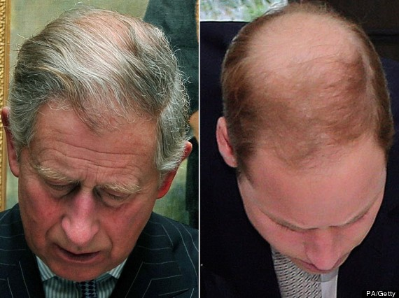 how to stop balding at a young age