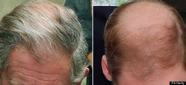 Prince William Is Balder Than His Dad (PICTURE)