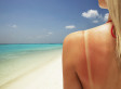 9 Places We Never Remember To Put Sunscreen