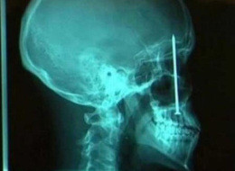 The Craziest X-Rays Ever