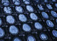 Brain Implants To Cure Mental Disorders May Soon Be A Thing