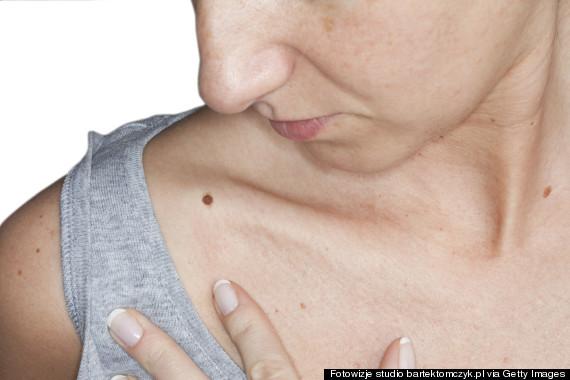 skin moles