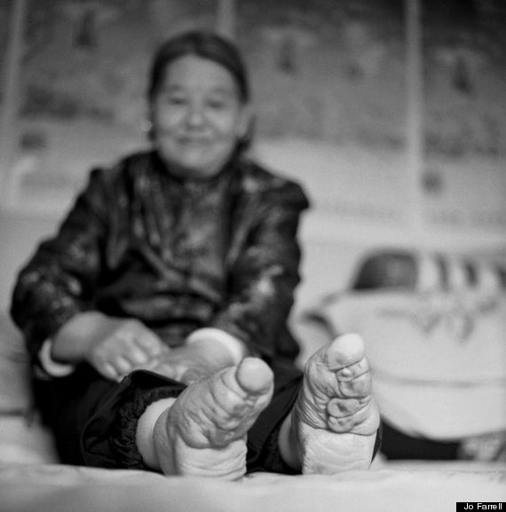 Chinese Foot Binding: These Pictures Expose The Barbaric