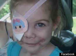 It Was A Hoax: No Evidence KFC 'Kicked Out Little Girl Because Her Injuries Were Scaring Customers'