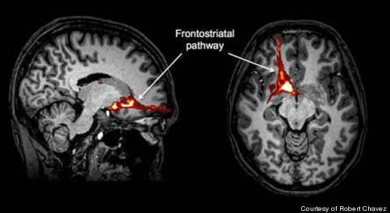self esteem brain