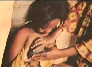 Breast Ironing