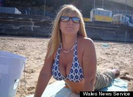 'My PIP Breast Implants Exploded': Woman Describes Horrors Of Botched Boob Job