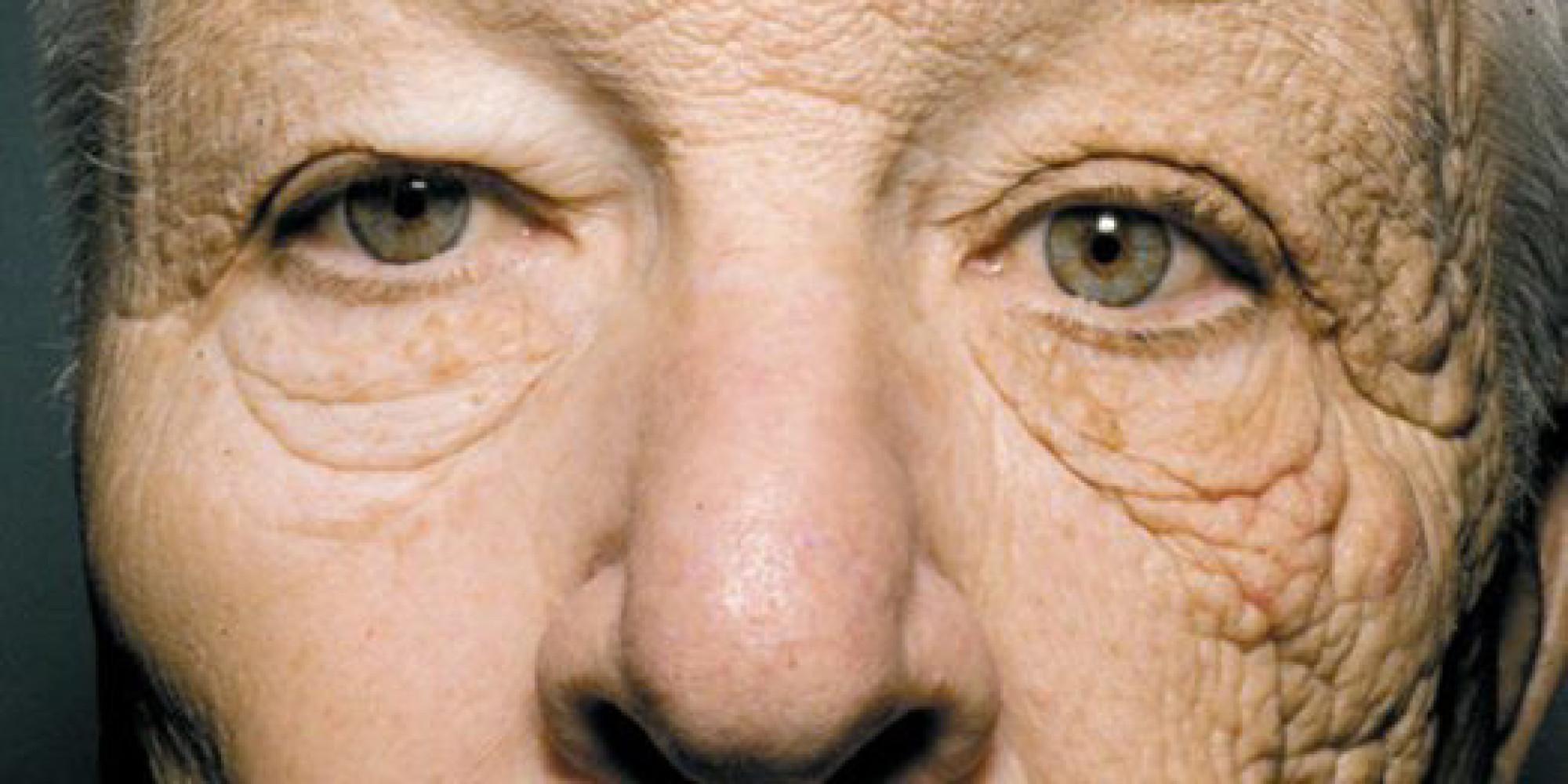 Siccome è corretto per usare la crema di decolorazione di faccia
