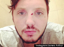 James Arthur In 'Bar Brawl'