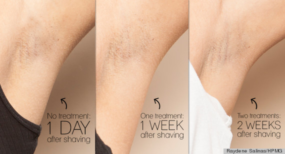 why laser hair removal just might be worth every penny | huffpost, Human Body