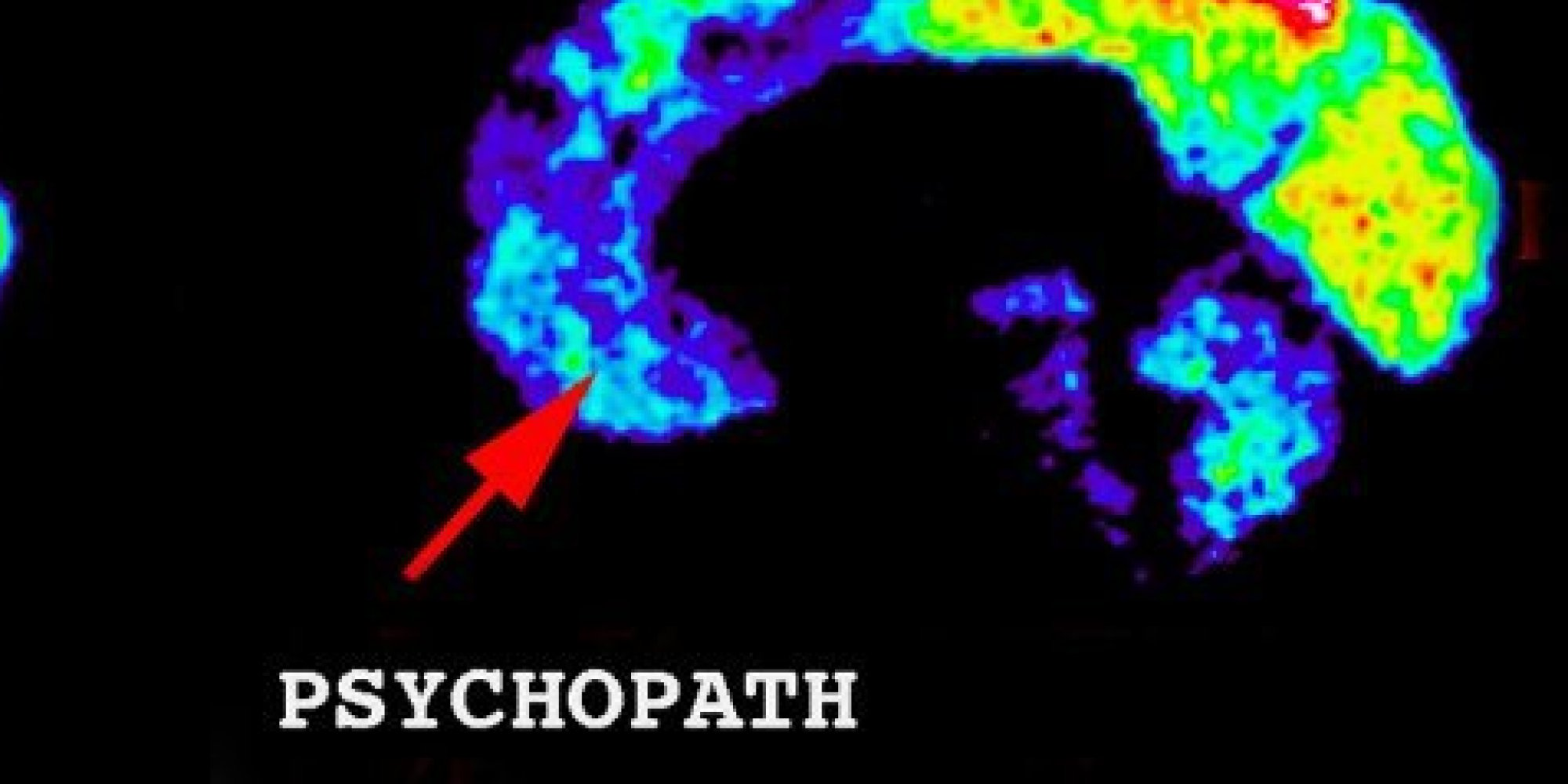 Interview With the Psychopath | Nick Simmons
