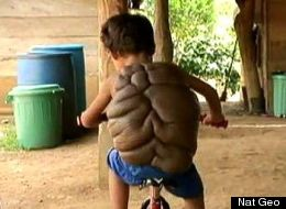 Generous 'Turtle Boy' Has Gone Through Shell And Back