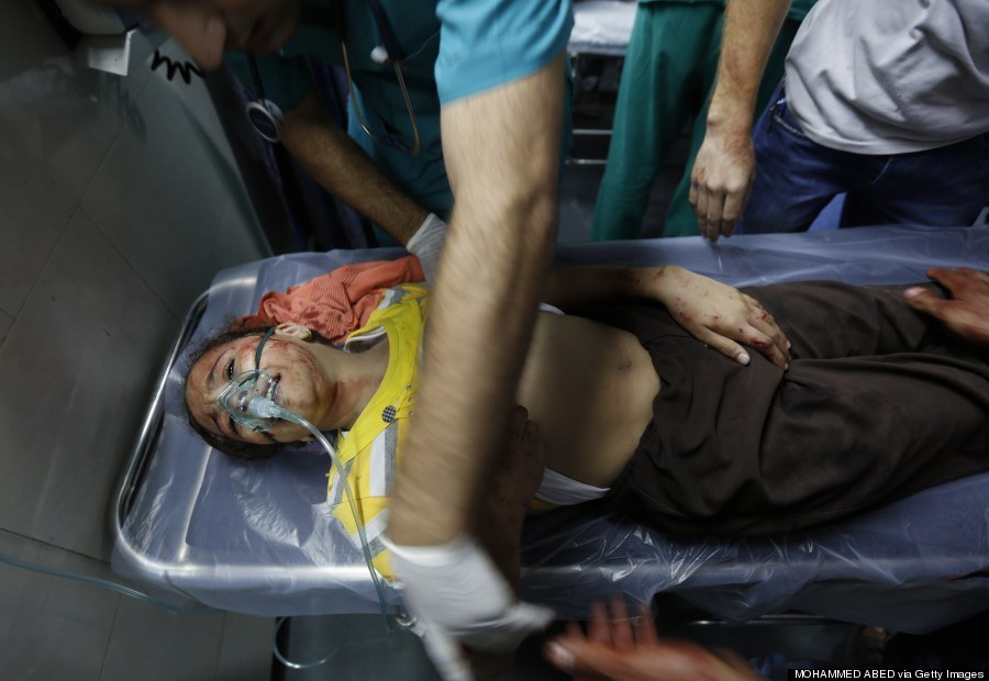 gaza injured child