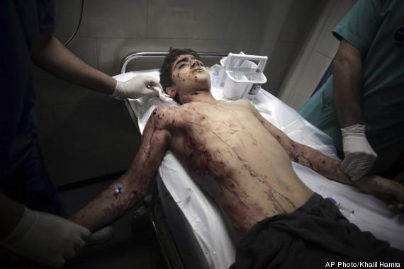 palestino ferido gaza