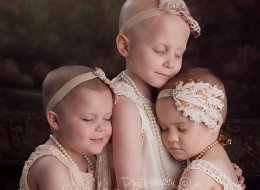 3 Young Cancer Fighters From Powerful Viral Photo Are Now All Cancer-Free Or In Remission