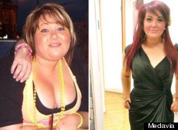 Weight Loss Stories: Woman Who Had Supportive Sisters But Felt Like An Ugly Duckling Lost 8 Stone