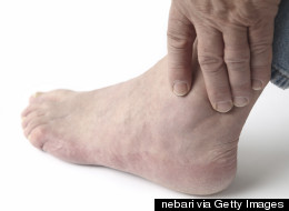 Gout, 'The Disease Of The Kings', Is On The Rise - Here's How To Spot The Symptoms