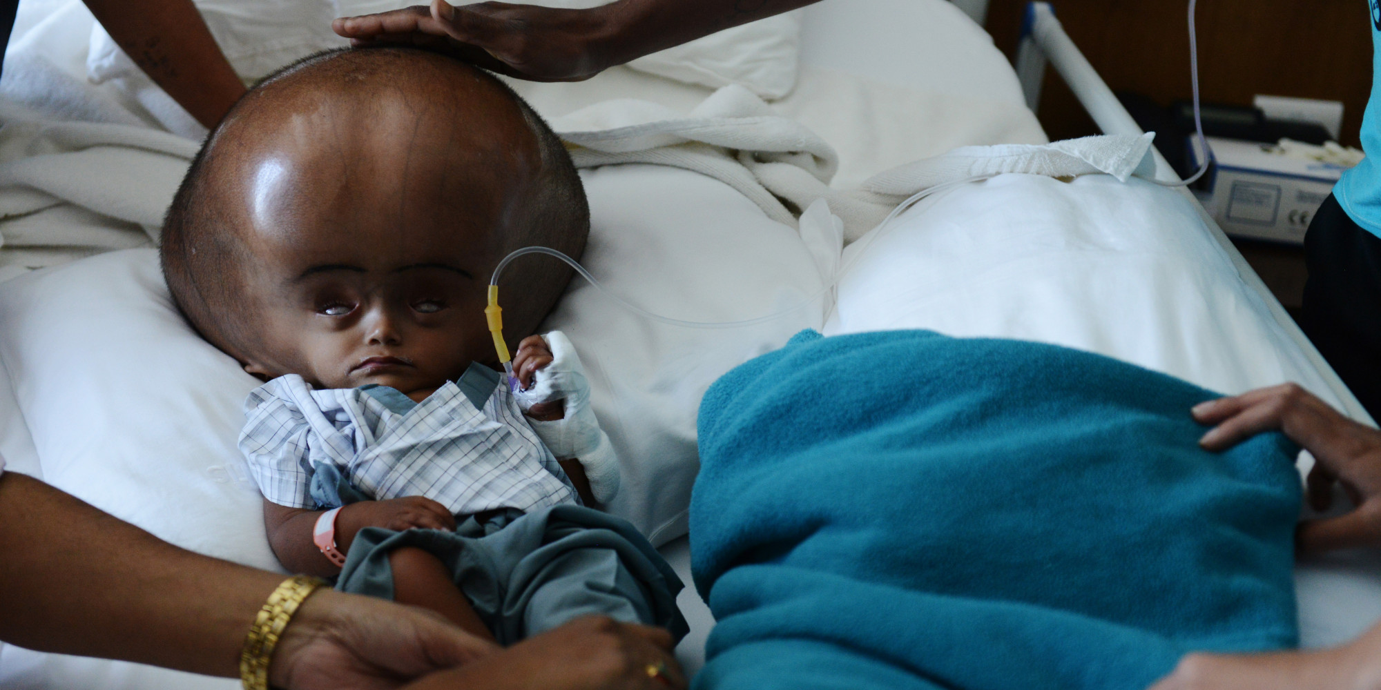 Roona Begum, Girl With Hydrocephalus, Beats Doctor's Odds ...