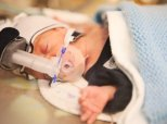 Time-Lapse Video Shows Premature Baby's Incredible Transformation