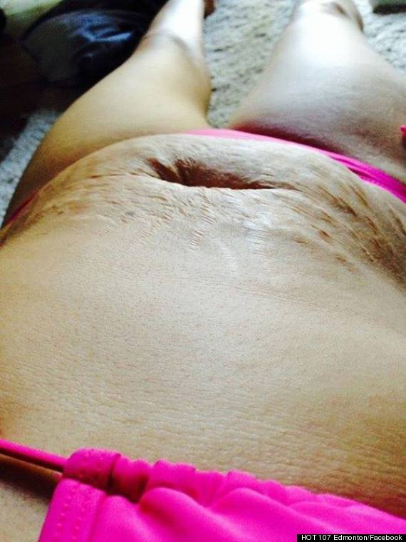 woman stretch marks viral