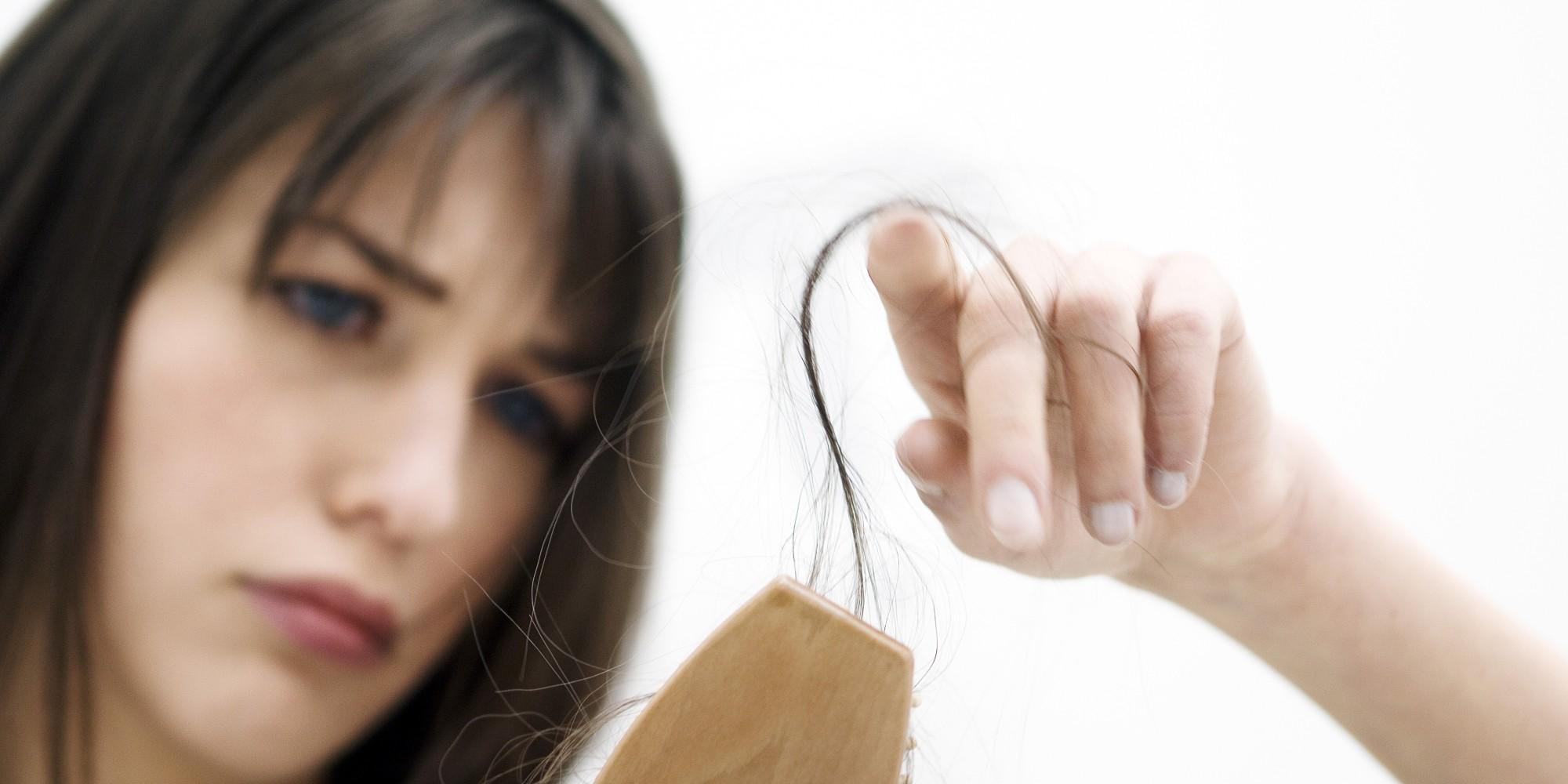 Kết quả hình ảnh cho losing hair