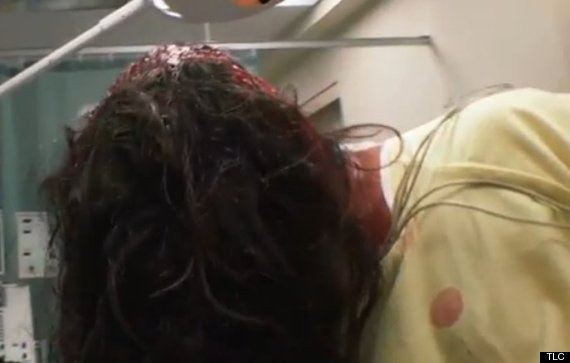 man scalped by escalator