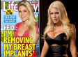 Heidi Montag Wants Huge Breast Implants OUT