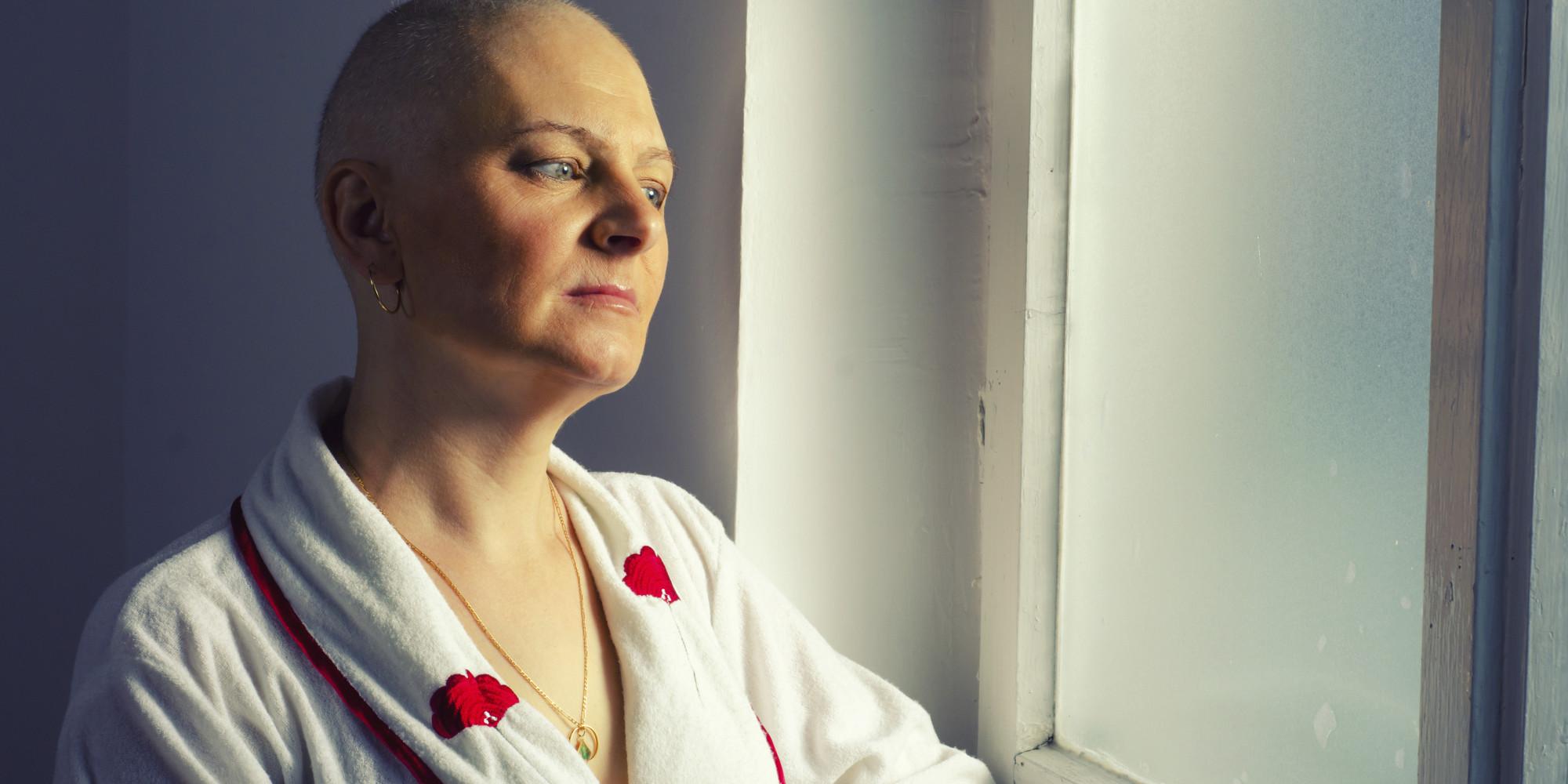 Рак так так лысая девчонка 11 фотография
