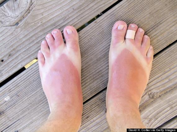 sunburn flip flops