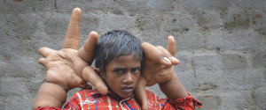 Boy With Giant Hands