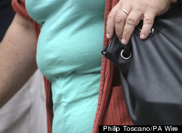 Obesity Is Linked To A Higher Risk Of Developing Dementia, Experts Warn