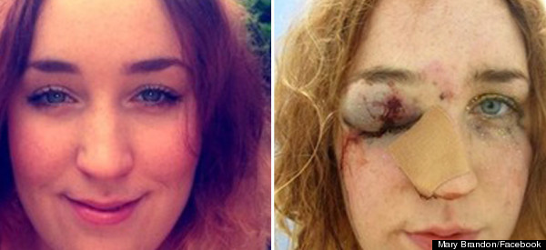 Student Punched In The Face At Notting Hill Carnival After Telling Man Not To Grope Her