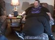 Man With 100-Pound Scrotum Inspired By Another Scrotum To Get Mass Removed