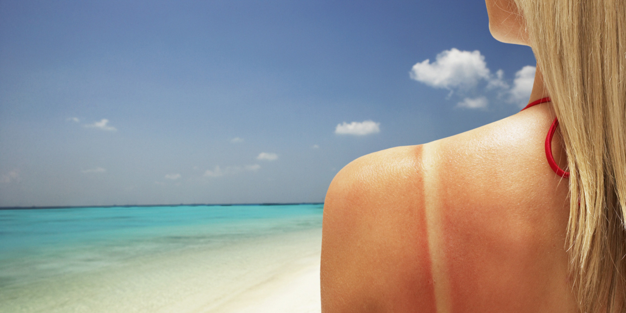 What Actually Happens When You Get A Sunburn | HuffPost