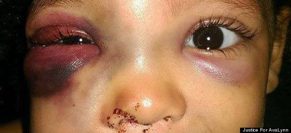 Mom Claims Daughter Was Brutally Beat Up On School Playground