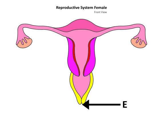 vaginal cancer types